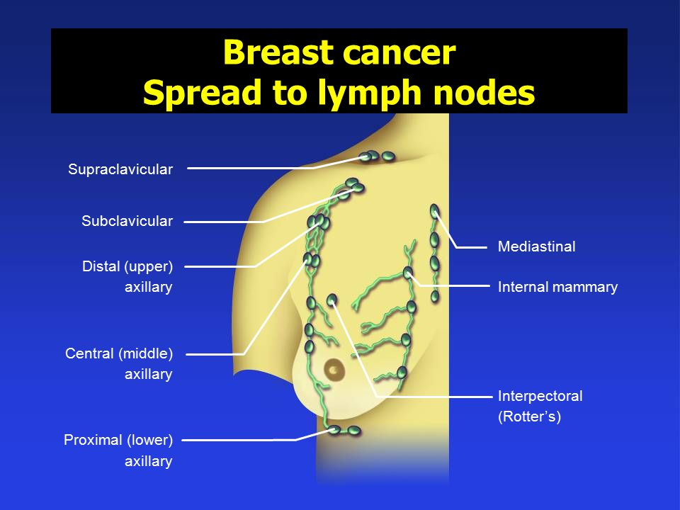 Breast cancer Spread to lymph nodes
