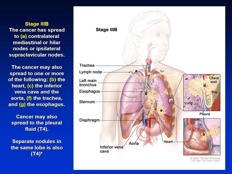 Cancer may also spread to the pleural fluid (T4).