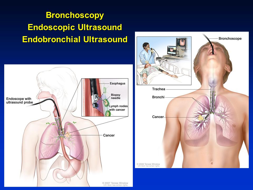 Endoscopic Ultrasound Endobronchial Ultrasound