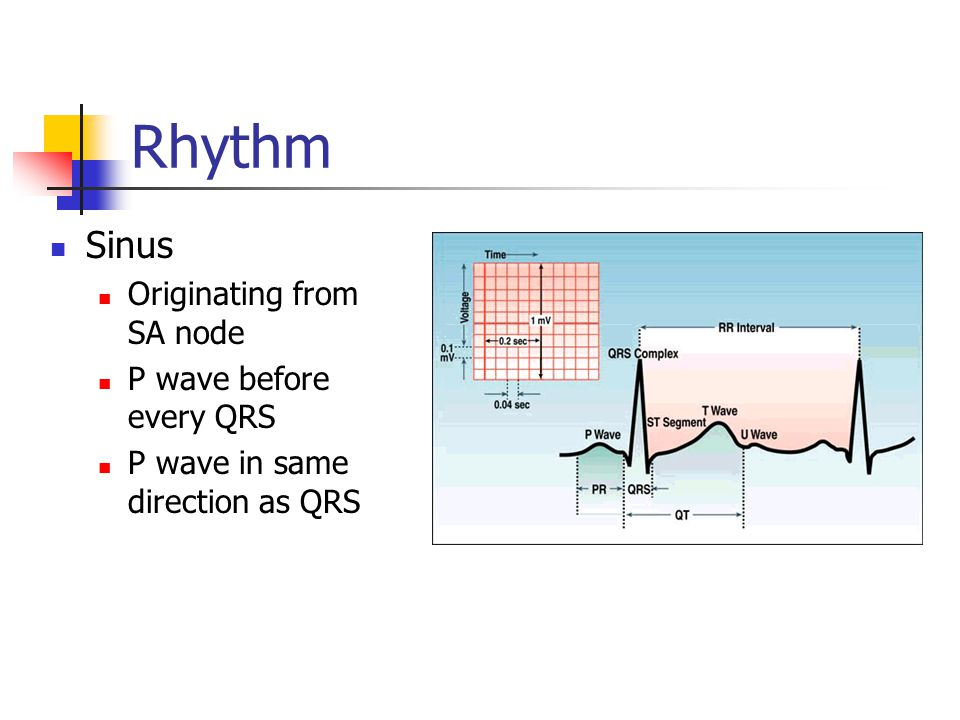 Rhythm Sinus Originating from SA node P wave before every QRS
