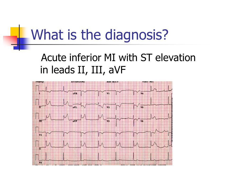 What is the diagnosis Acute inferior MI with ST elevation in leads II, III, aVF