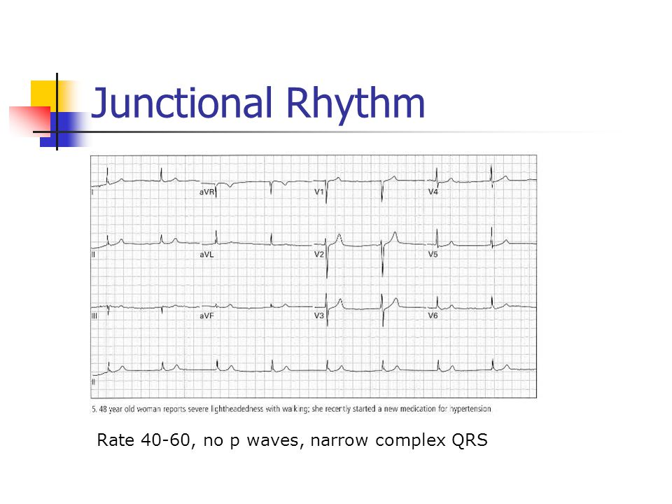 Junctional Rhythm Rate 40-60, no p waves, narrow complex QRS