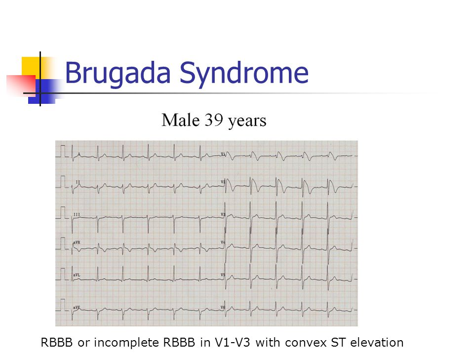 Brugada Syndrome RBBB or incomplete RBBB in V1-V3 with convex ST elevation