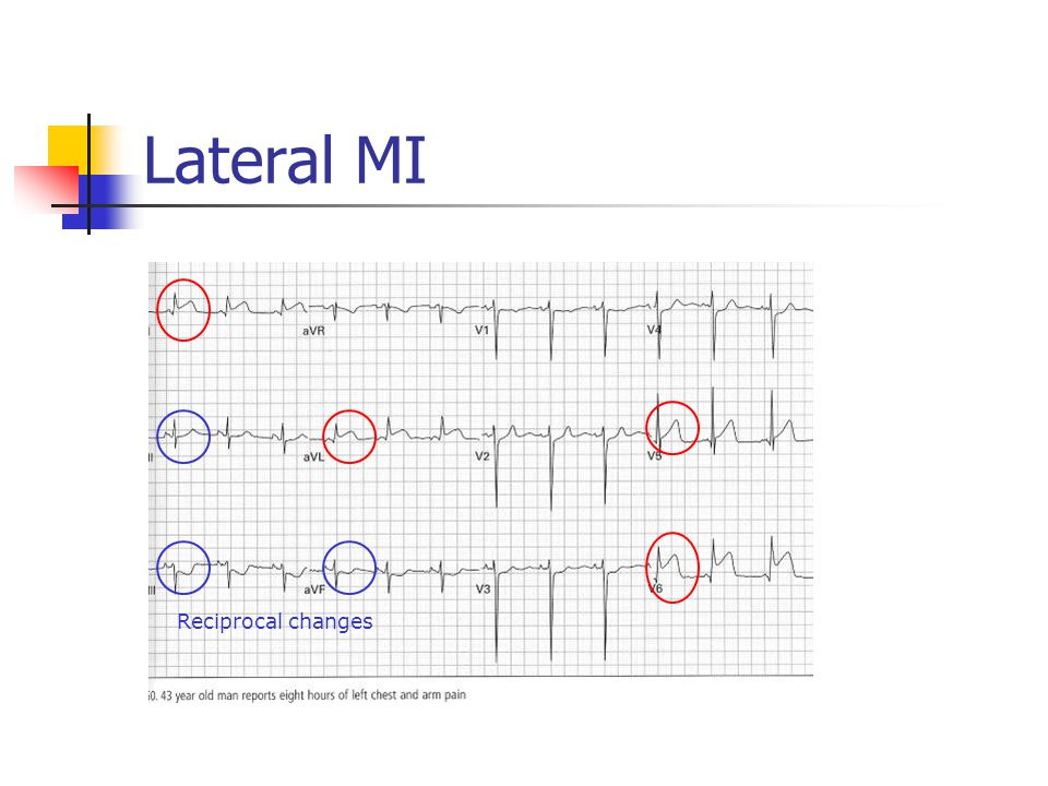 Lateral MI Reciprocal changes