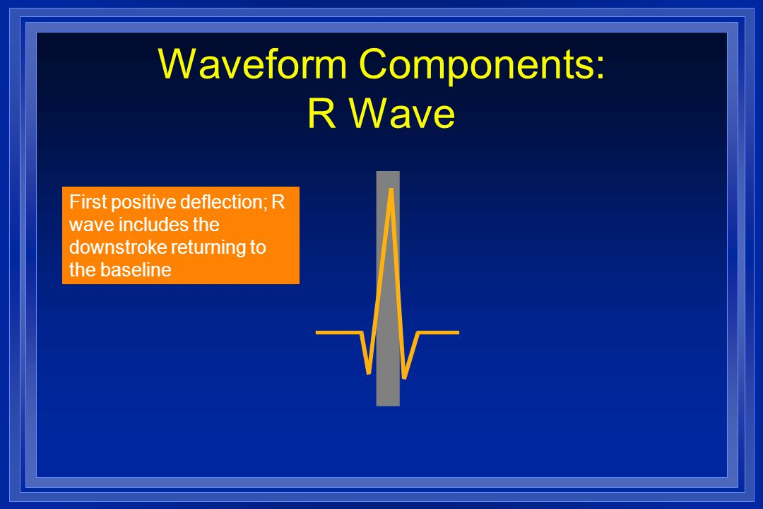 Waveform Components: R Wave