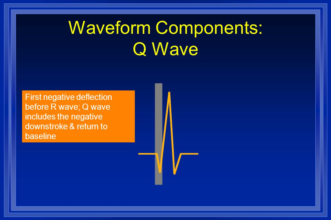 Waveform Components: Q Wave