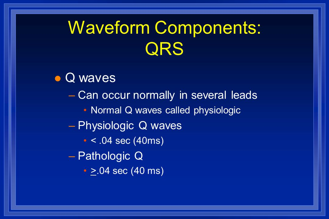 Waveform Components: QRS