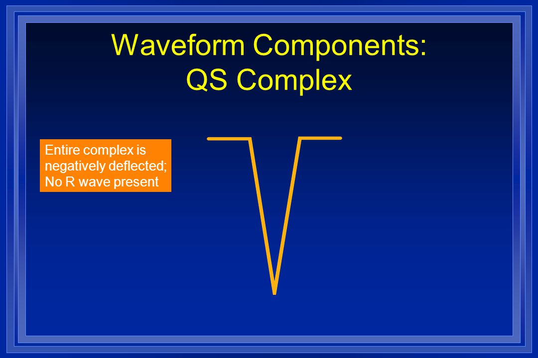 Waveform Components: QS Complex