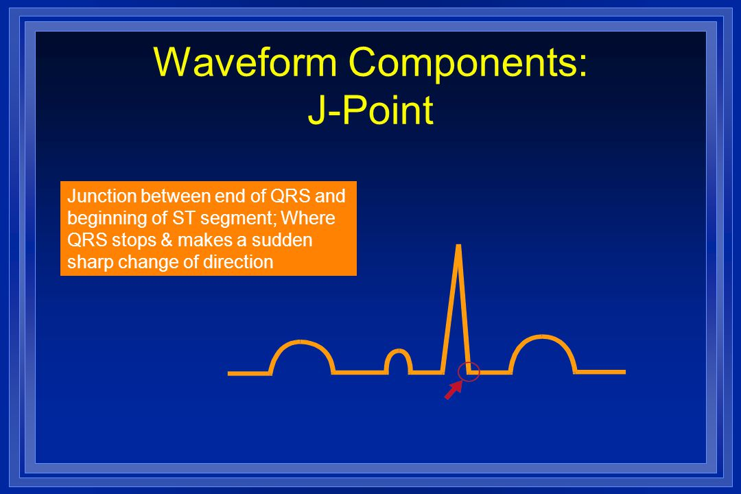 Waveform Components: J-Point