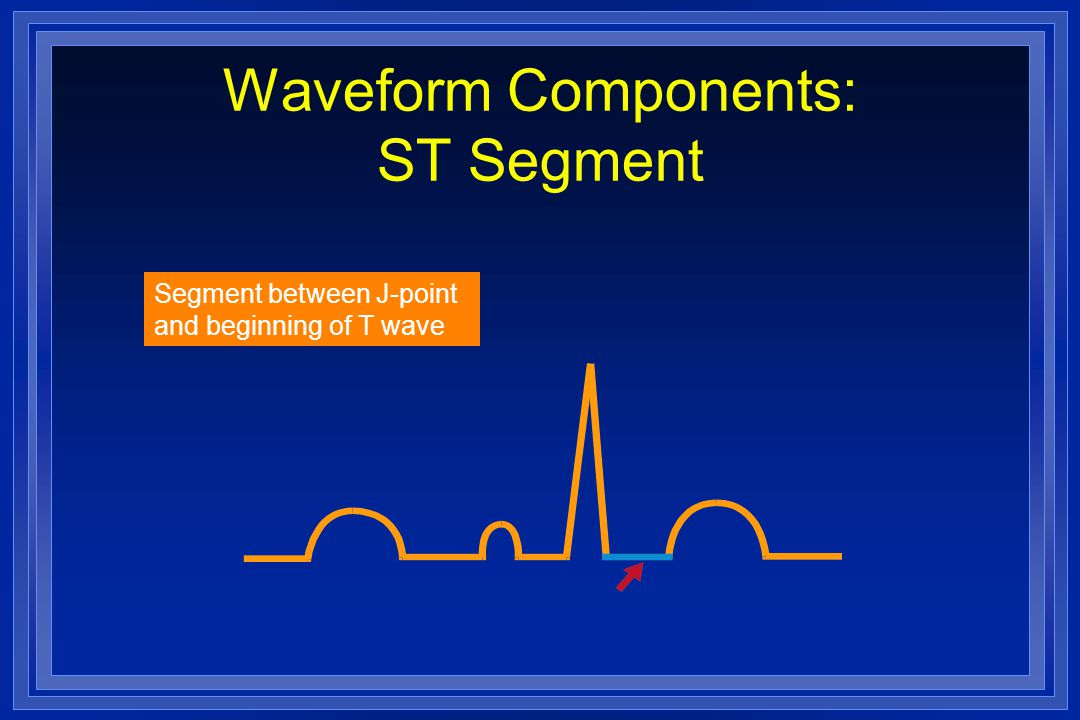 Waveform Components: ST Segment