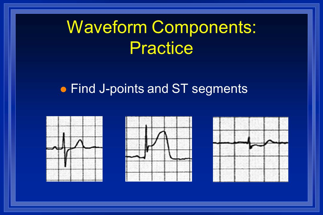 Waveform Components: Practice