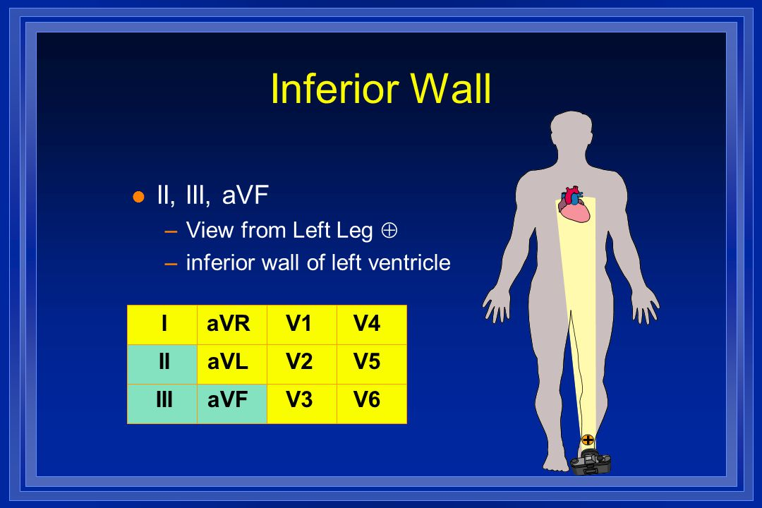 Inferior Wall II, III, aVF View from Left Leg 