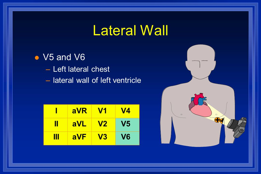 Lateral Wall V5 and V6 Left lateral chest