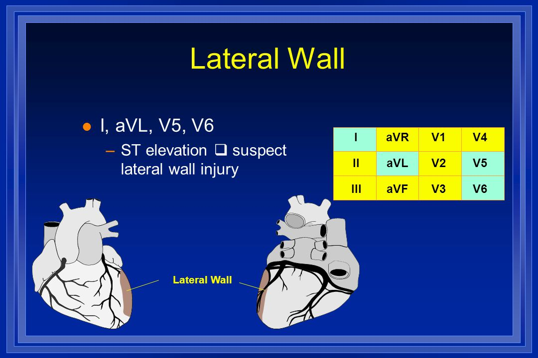 Lateral Wall I, aVL, V5, V6 ST elevation  suspect lateral wall injury