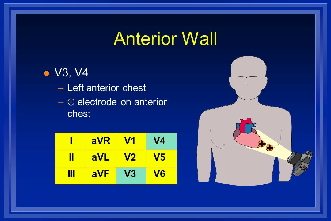 Anterior Wall V3, V4 Left anterior chest  electrode on anterior chest