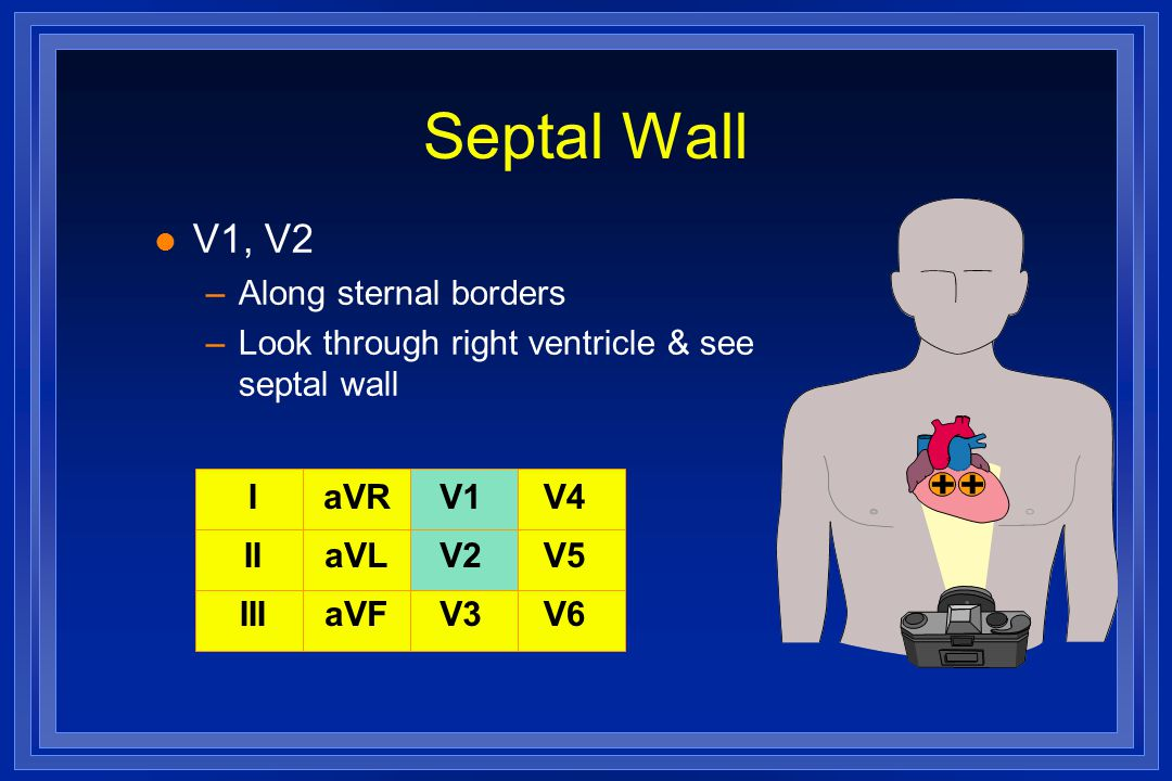 Septal Wall V1, V2 Along sternal borders