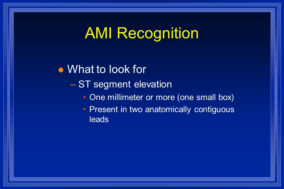AMI Recognition What to look for ST segment elevation