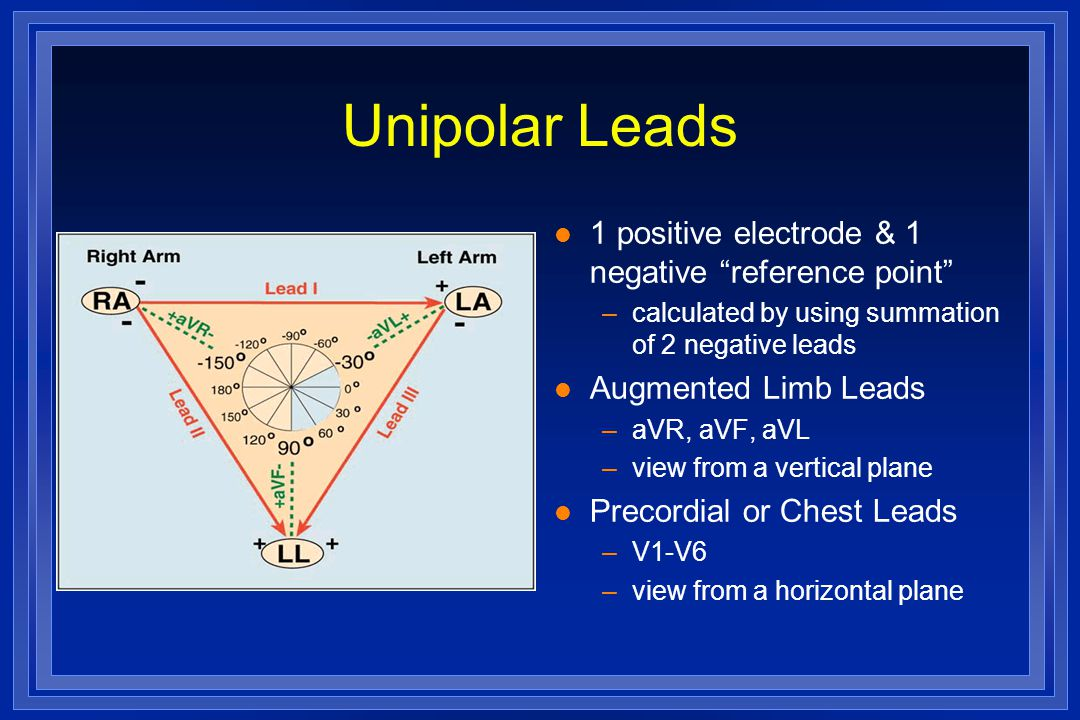 Unipolar Leads 1 positive electrode & 1 negative reference point