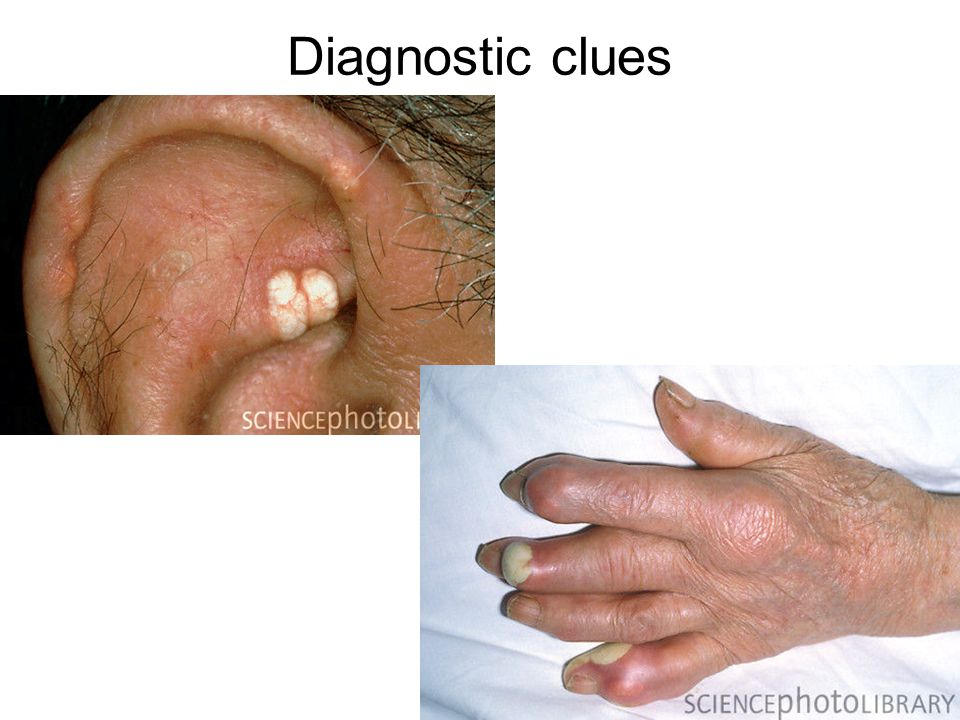 Diagnostic clues