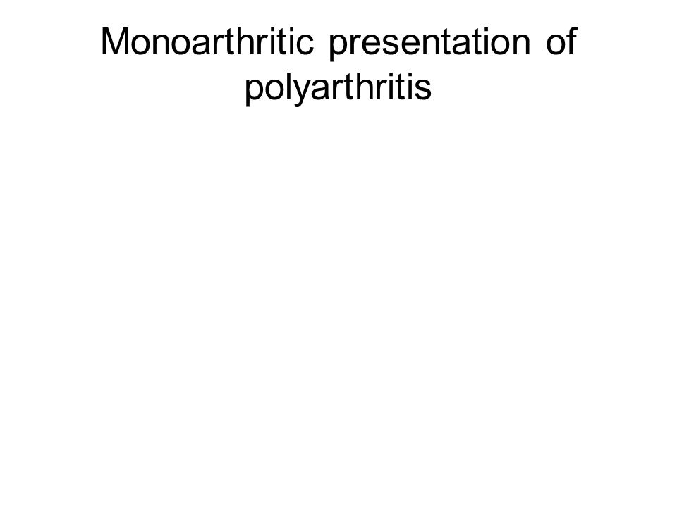 Monoarthritic presentation of polyarthritis