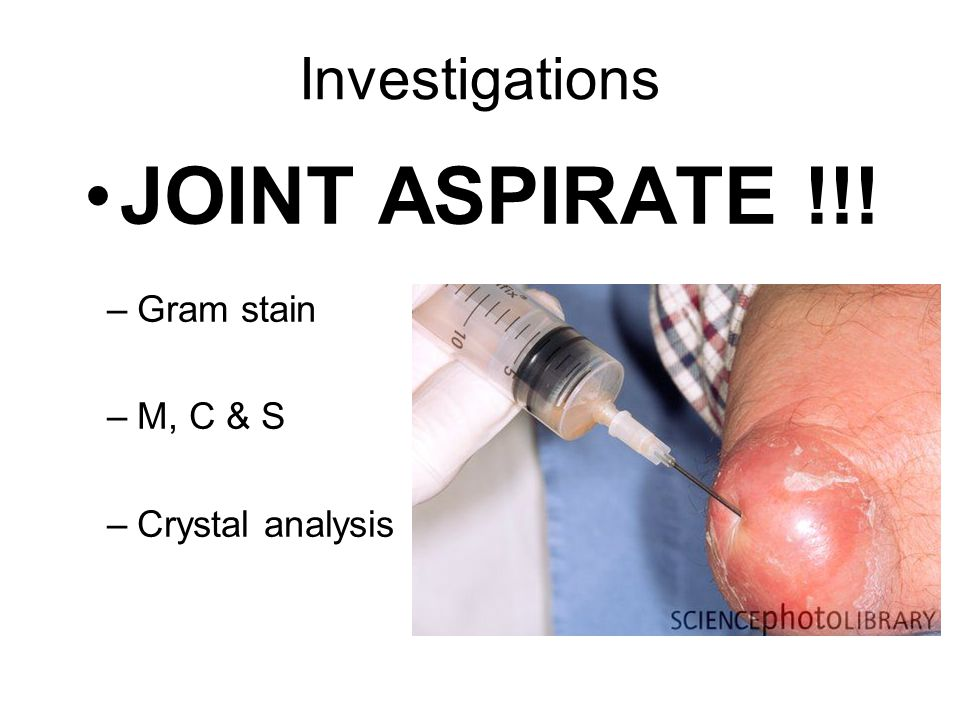 Investigations JOINT ASPIRATE !!! Gram stain M, C & S Crystal analysis