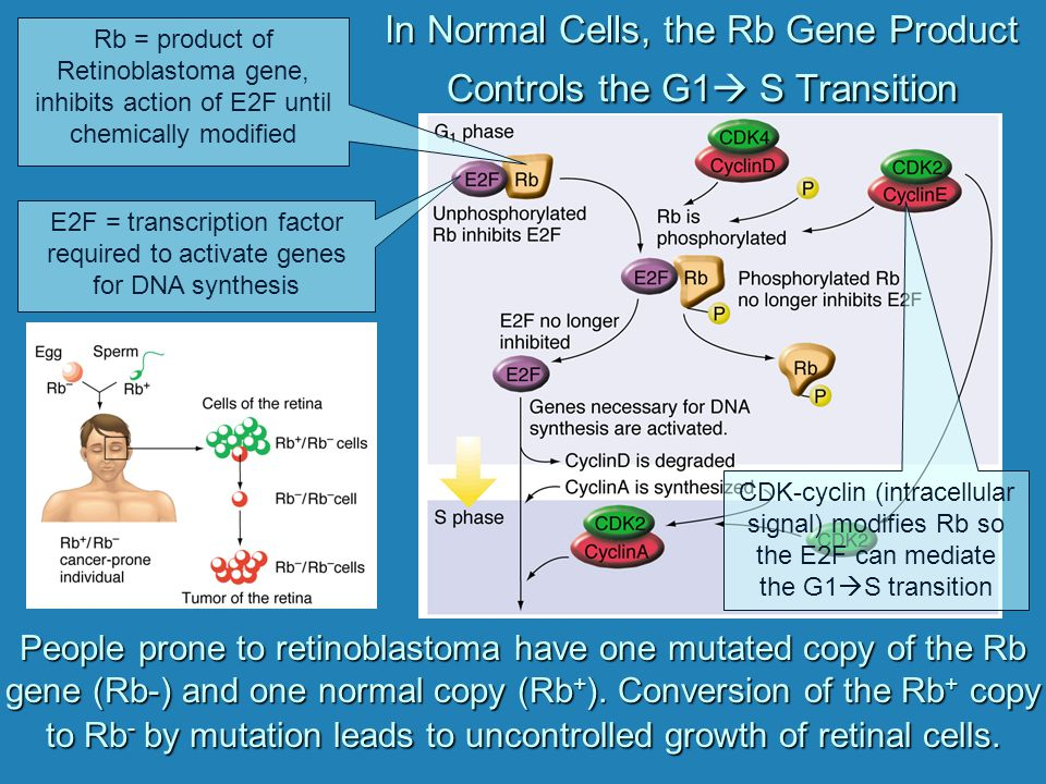 In Normal Cells, the Rb Gene Product Controls the G1 S Transition