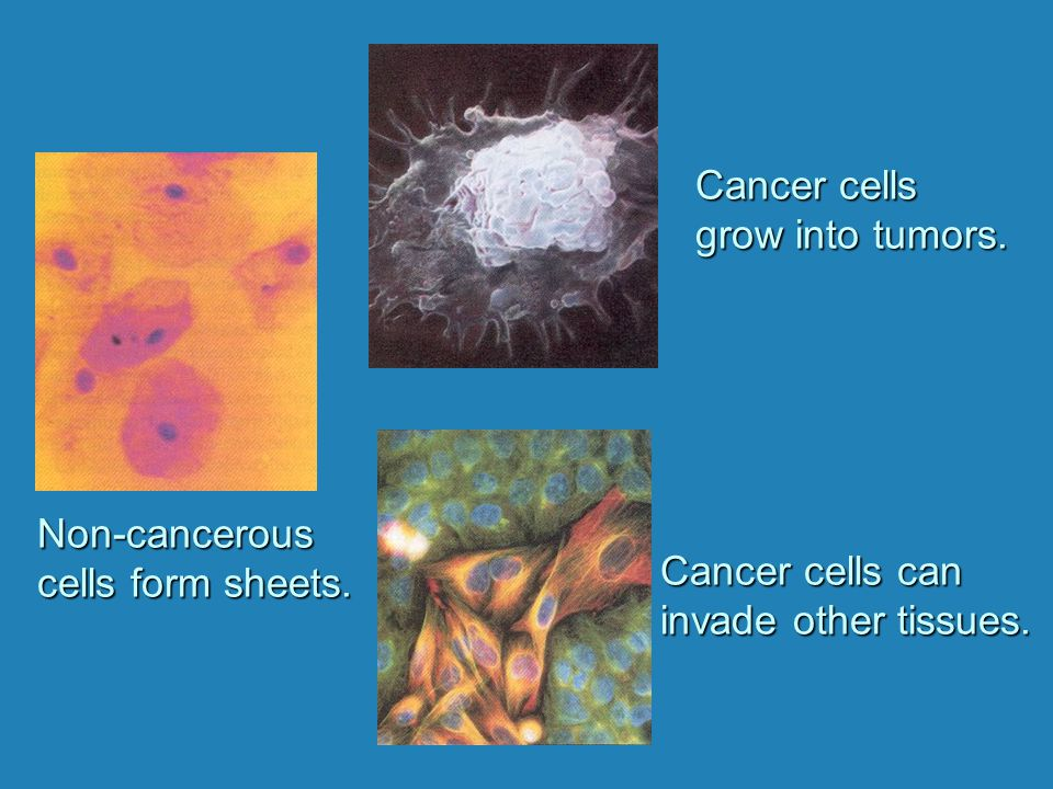 Cancer cells grow into tumors. Non-cancerous. cells form sheets.