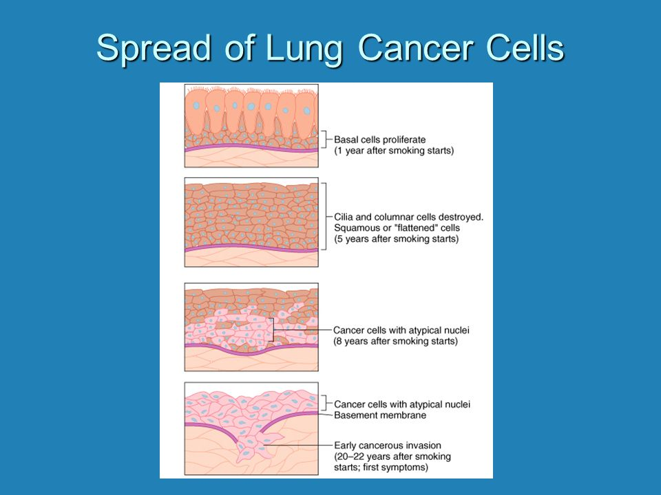 Spread of Lung Cancer Cells