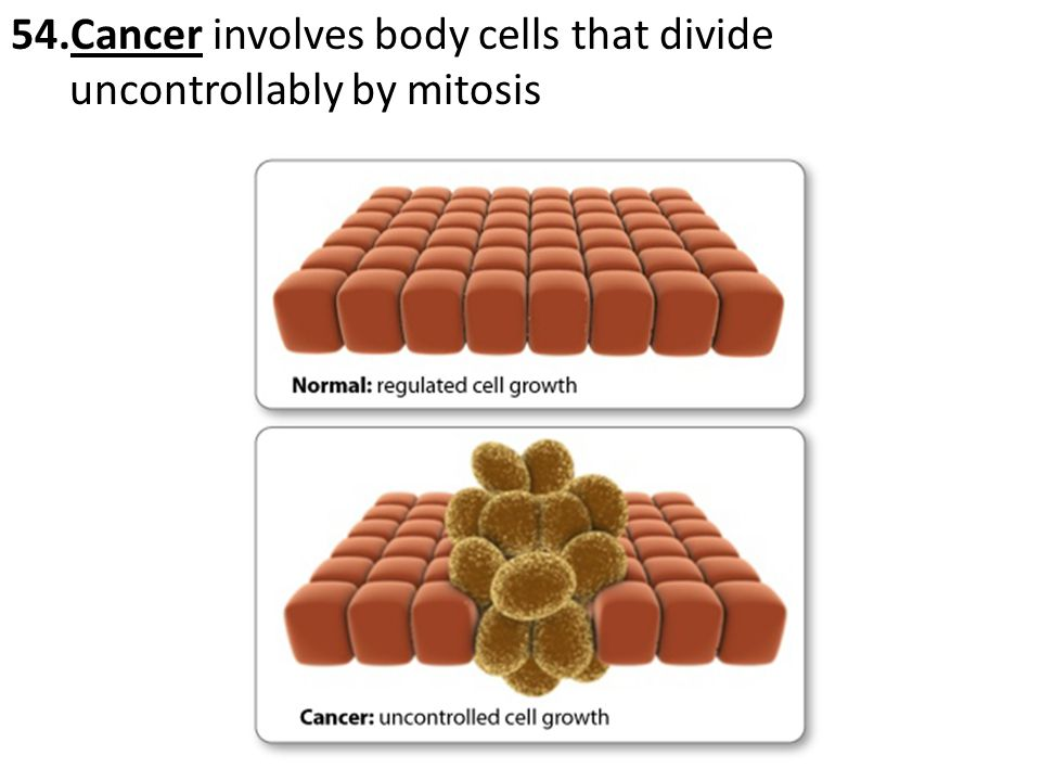 Cancer involves body cells that divide uncontrollably by mitosis