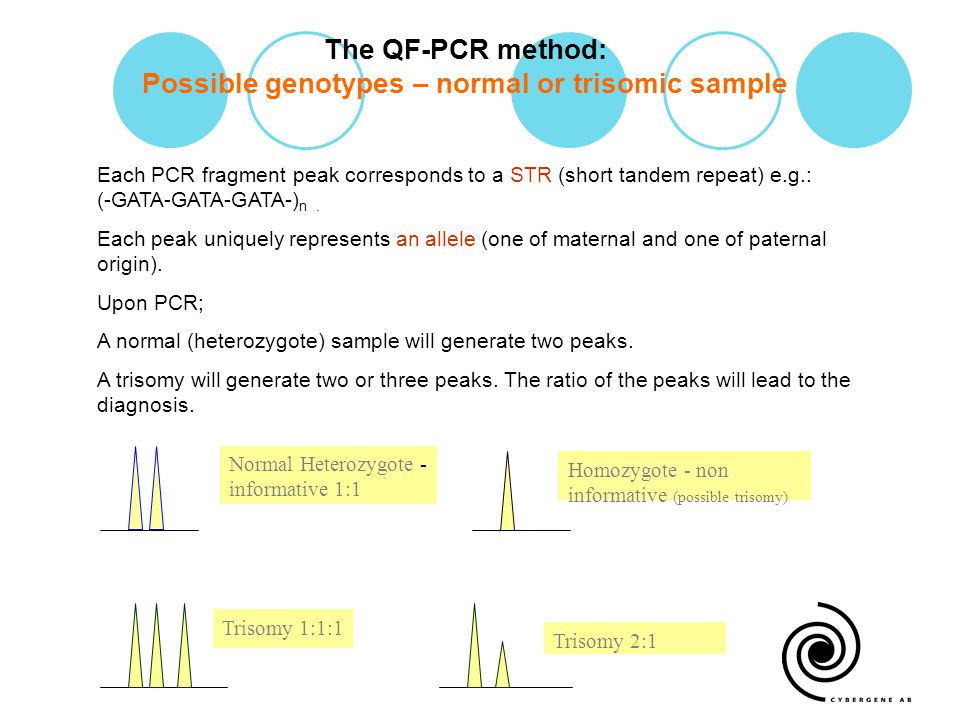 The QF-PCR method: Possible genotypes – normal or trisomic sample