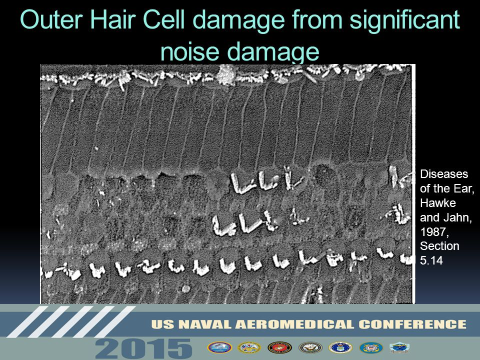 Outer Hair Cell damage from significant noise damage