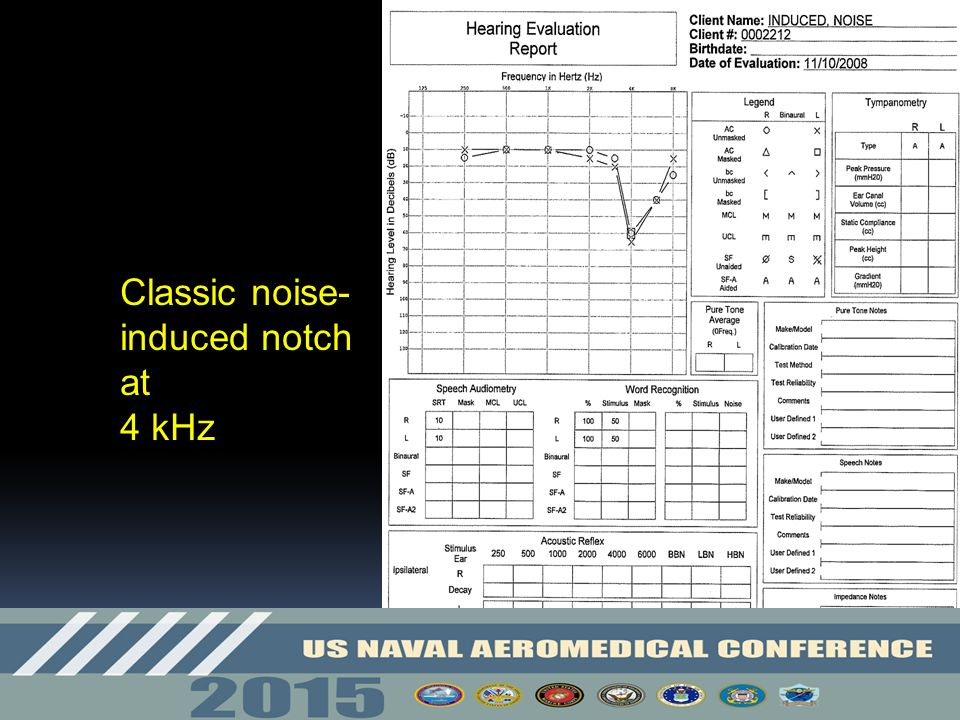 Classic noise-induced notch at