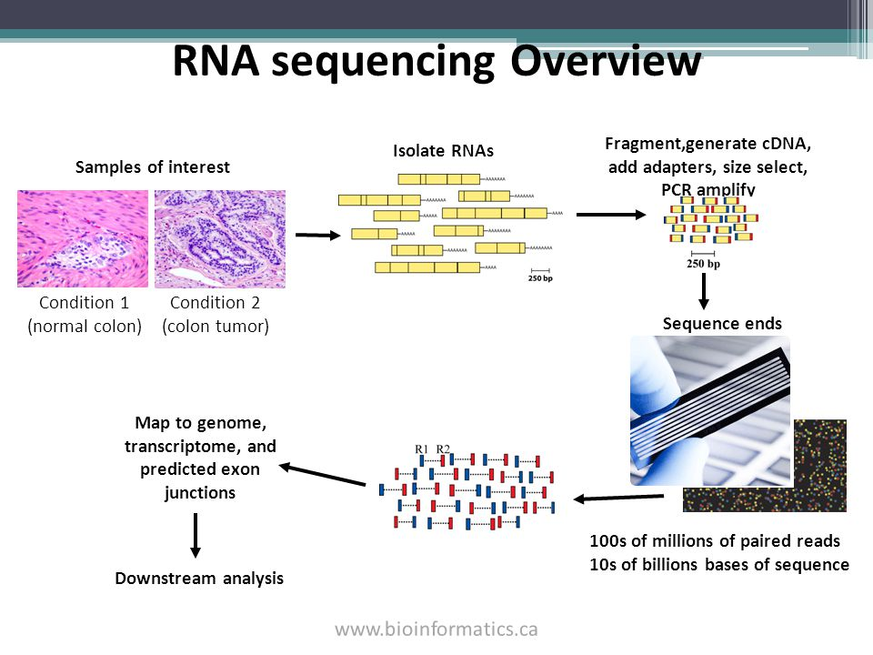 RNA sequencing Overview