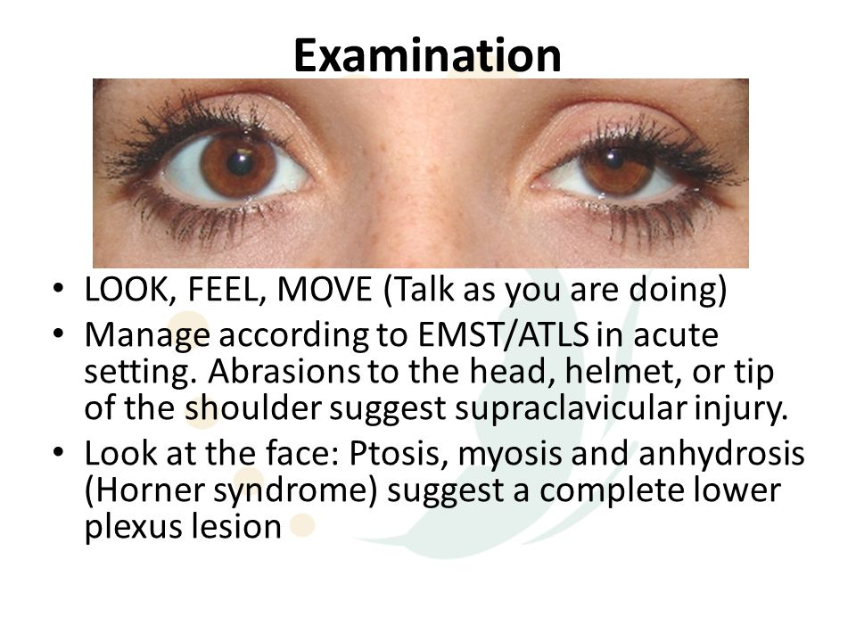 Examination LOOK, FEEL, MOVE (Talk as you are doing)