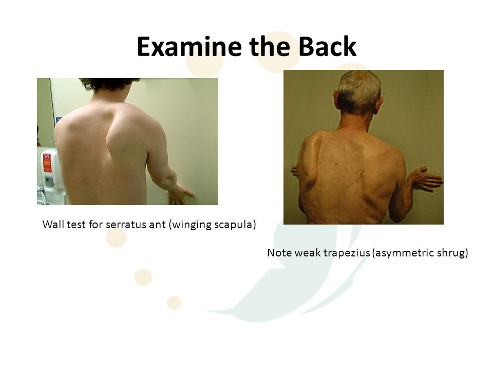 Examine the Back Wall test for serratus ant (winging scapula)