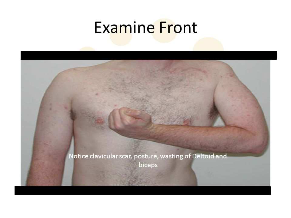Notice clavicular scar, posture, wasting of Deltoid and biceps