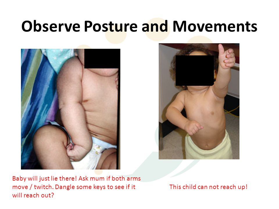 Observe Posture and Movements