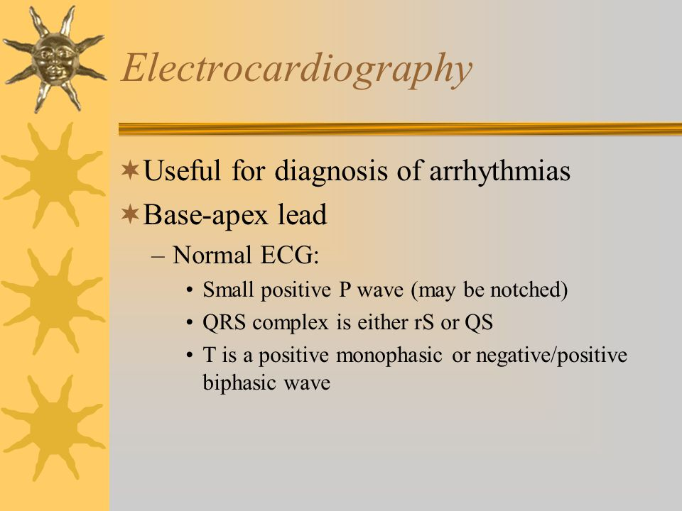 Electrocardiography Useful for diagnosis of arrhythmias Base-apex lead