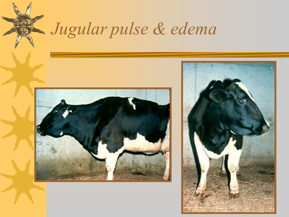Jugular pulse & edema