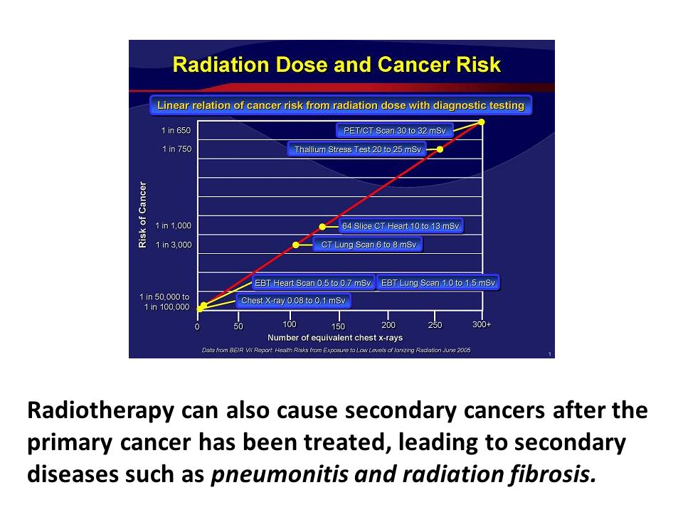 Radiotherapy can also cause secondary cancers after the primary cancer has been treated, leading to secondary diseases such as pneumonitis and radiation fibrosis. In the 1970s, Dr. Irwin Bross led an important project studying the alarming increase in rates of leukemia. After four years of work, it became disturbingly clear to the research team that the main cause of the rising rates of leukemia was medical radiation, in the form of diagnostic medical X-rays.
