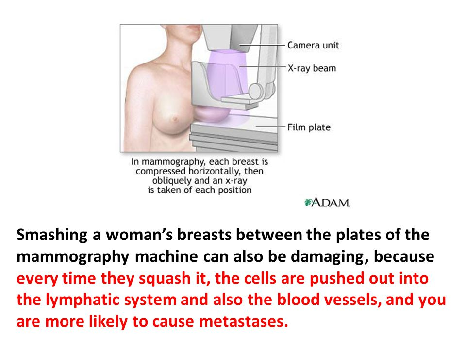 Smashing a woman's breasts between the plates of the mammography machine can also be damaging. If a person has a tumor—say a woman with a lump in her breast—you shouldn't feel that lump except when you initially examine it, because every time they squash it, the cells are pushed out into the lymphatic system and also the blood vessels, and you are more likely to cause metastases. There is a real concern about this, but they never tell this to women.
