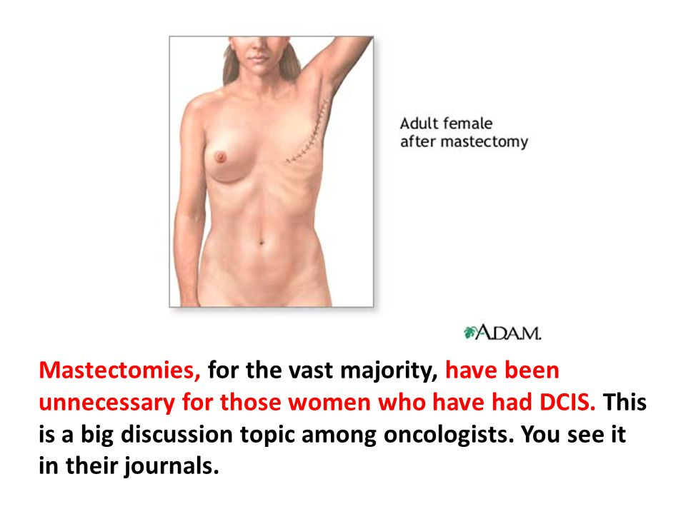 Mastectomies, for the vast majority, have been unnecessary for those women who have had DCIS. This is a big discussion topic among oncologists. You see it in their journals.