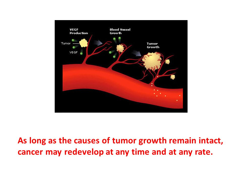 As long as the causes of tumor growth remain intact, cancer may redevelop at any time and at any rate.