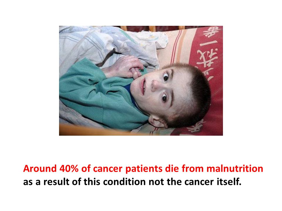 Around 40% of cancer patients die from malnutrition as a result of this condition not the cancer itself.