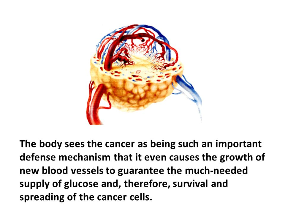 The body sees the cancer as being such an important defense mechanism that it even causes the growth of new blood vessels to guarantee the much-needed supply of glucose and, therefore, survival and spreading of the cancer cells. It knows that cancer cells do not cause but, prevent death; at least for a while, until the wasting away of an organ leads to the demise of the entire organism. If the trigger mechanisms for cancer (causal factors) are properly taken care of, such an outcome can be avoided.