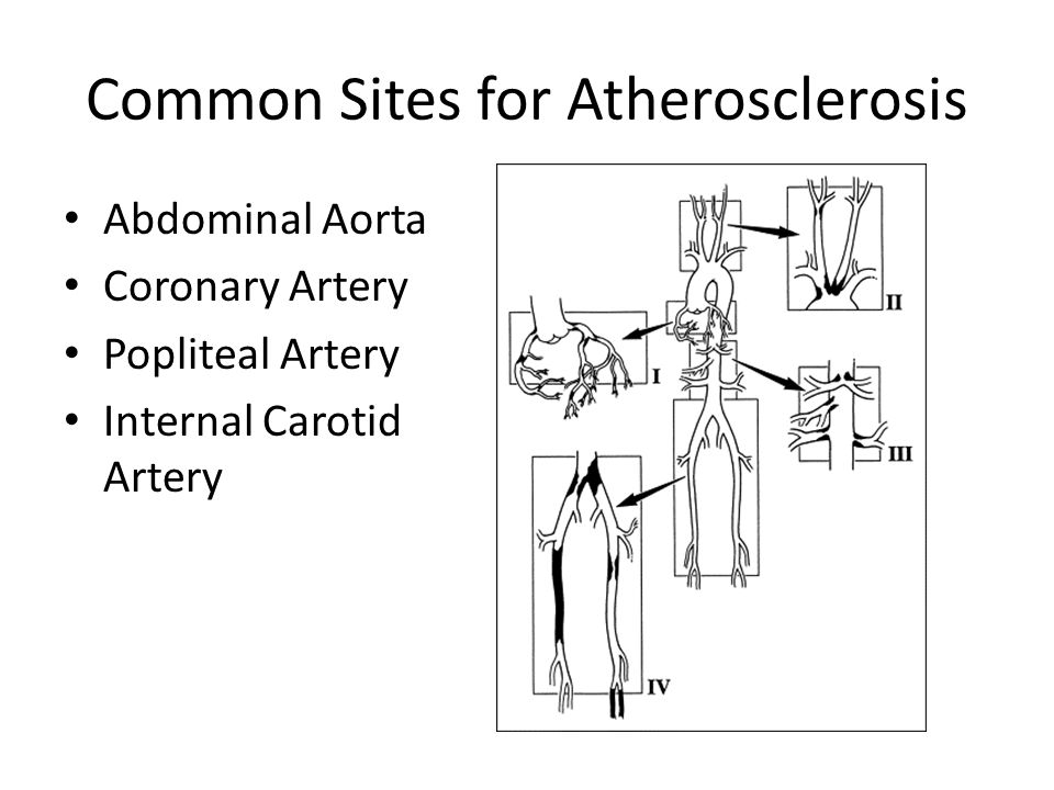 Common Sites for Atherosclerosis