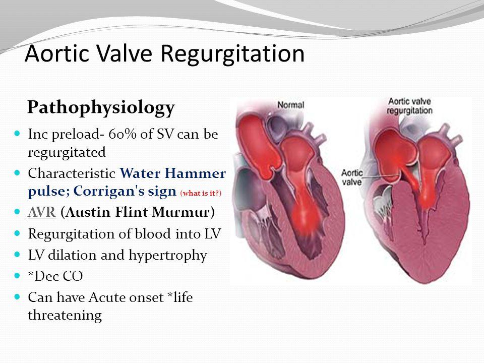Cardiovascular: Valvular, Cardiomyopathy, Aneurysm and ... | 960 x 720 jpeg 104kB