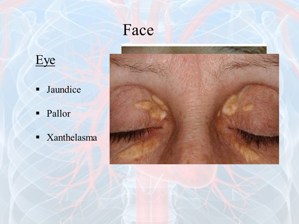 Face Eye Jaundice Pallor Xanthelasma