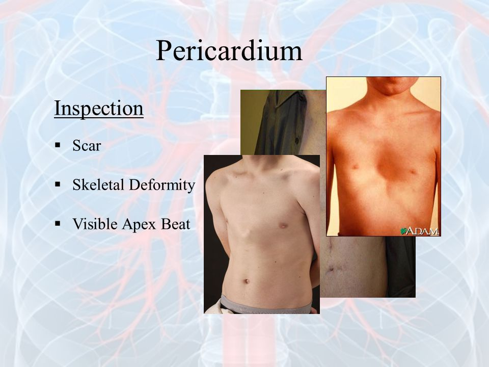 Pericardium Inspection Scar Skeletal Deformity Visible Apex Beat