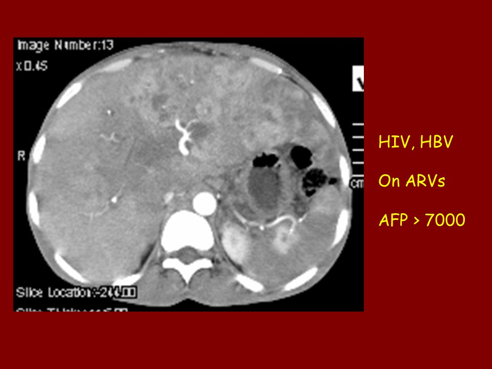 HIV, HBV On ARVs AFP > 7000